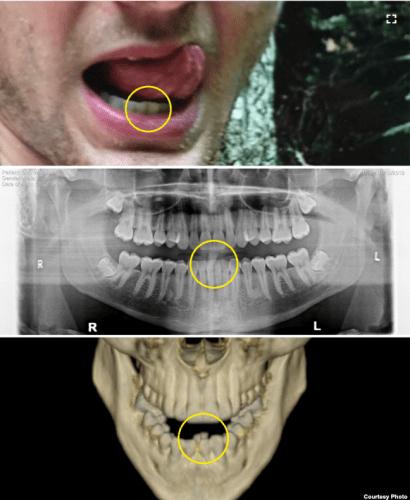 VOAが公開した、ワームビアさんの歯列の変化を示す写真