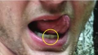 北朝鮮に行く前のワームビアさんの歯並びの写真(VOA)